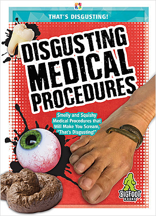 Cover: Disgusting Medical Procedures