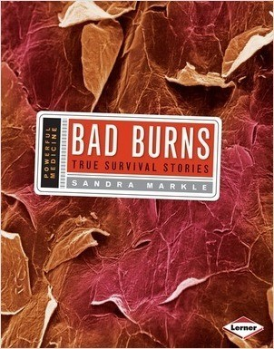 Cover: Bad Burns: True Survival Stories