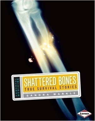 Cover: Shattered Bones: True Survival Stories