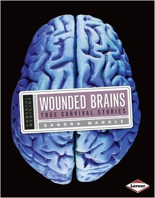 Cover: Wounded Brains: True Survival Stories