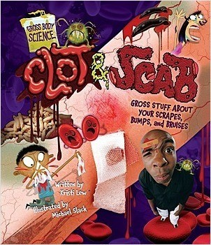 Cover: Clot & Scab: Gross Stuff about Your Scrapes, Bumps, and Bruises