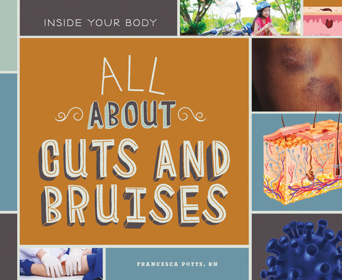 Cover: All About Cuts and Bruises