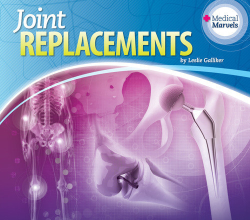 Cover: Joint Replacements